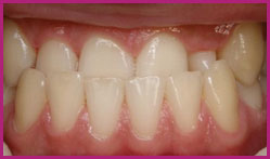 Patient's teeth before orthodontic treatment