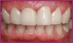Aesthetic dental restoration
