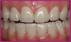 Безметалловая керамика на оксиде циркония на верхних фронтальных зубах