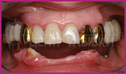 The patient's teeth before treatment