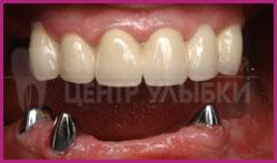 Съемный протез на прозрачных кламмерах на верхней челюсти